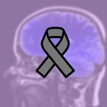 A depiction of the human brain overlaid with a brain cancer awareness grey ribbon